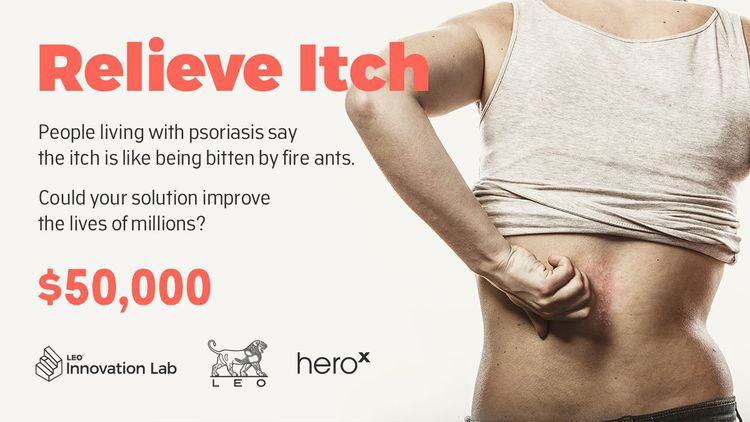 Relieve Itch Challenge